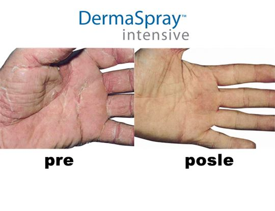Derma spray intensive
